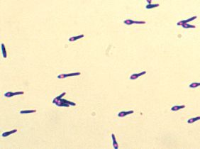 Clostridium botulinum small