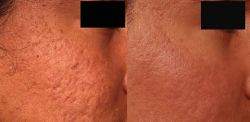 fractional-laser-treatments