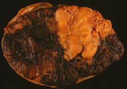 Melanoma in Lymph Node
