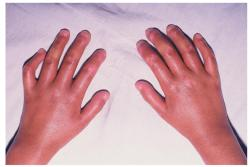 systemic-sclerosis-2