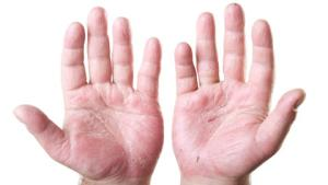 dermatitis-from-an-occupational