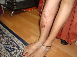 Klippel-Trenaunay-syndrome