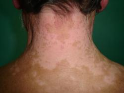Segmental-and-generalized-vitiligo