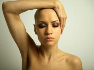 Women-with-alopecia