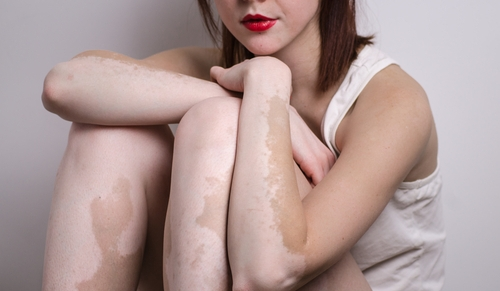 vitiligo autoimmune comorbidities